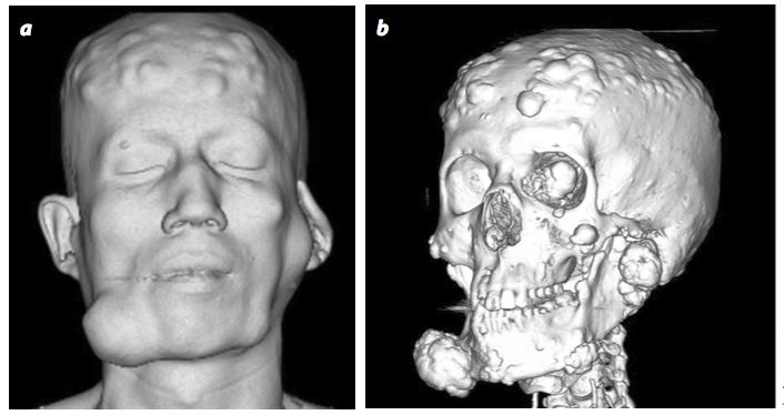 Síndrome de gardner, diagnóstico por tomografía computarizada y colonoscopia virtual