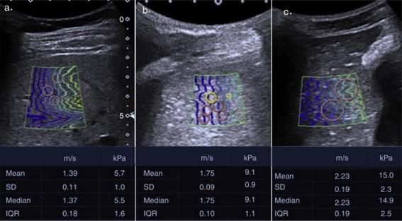 Medición de fibrosis-cirrosis hepática.